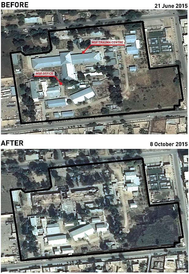 Kunduzin sairaala-alue ennen ja jälkeen ilmapommituksen (MSF trauma centre = päärakennus). Lähde: MSF